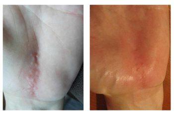 A osteopatia no tratamento de cicatrizes